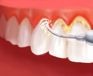 dental-plaque-removal