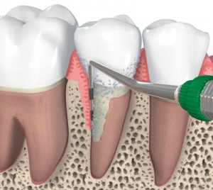 nonsurgical_periodontics