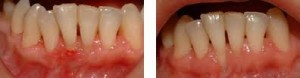 Parodontalna bolezen