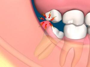 Modrostni zobje – tegoba odraslih ljudi