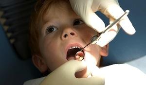 Mlečni zobje