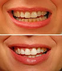 rumeni zobje