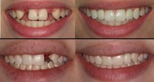 Zobni vsadki ali implantanti