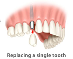 replacing-a-single-tooth-with-dental-implants-in-costa-rica