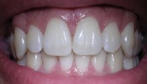 BREZPLAČNI pregledi vaše ustne votline v septembru 2014