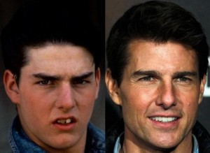 Tom Cruise razmak med zobmii