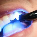 Beljenje zob – prednosti in slabosti različnih metod beljenja