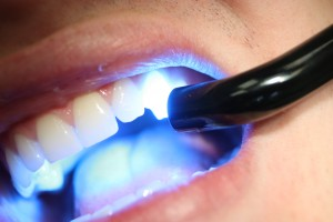 metode beljenja zob
