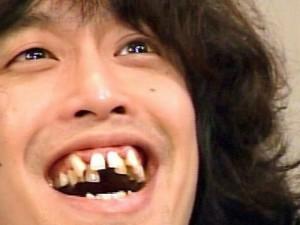 Krivi zobje kot lepotni ideal?