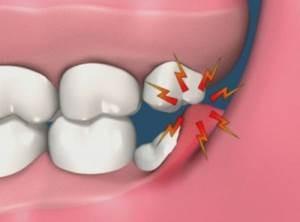 Lajšanje bolečin, ki jih povzročajo modrostni zobje – pred in po puljenju