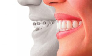 5 razlogov, zakaj bi morali vsi odrasli k ortodontu