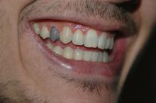 Črn zob je mrtvev zob. Kaj sedaj?