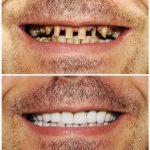 Zobne luske – cena in postopek namestitve