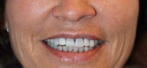 Cena zobne luske