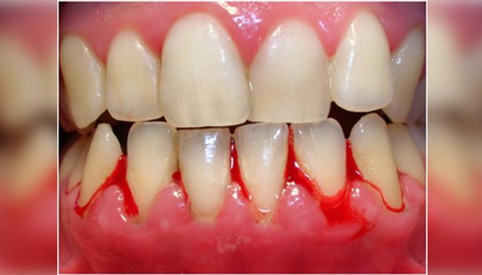 Krvavljenje zobne obloge
