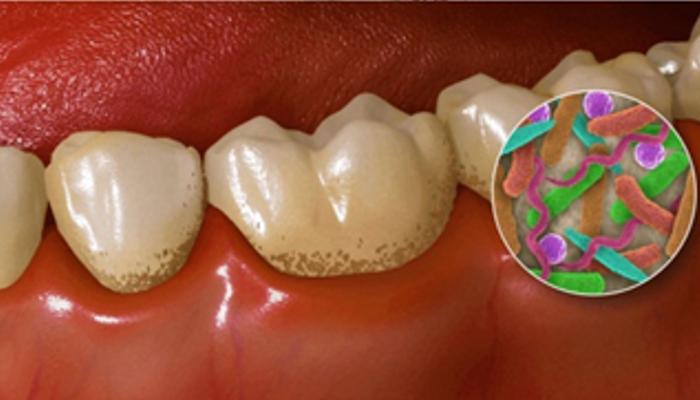 Ali je res potrebno redno čistiti zobni kamen?